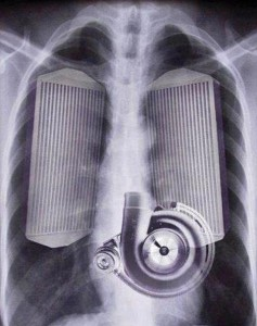 internal xray intercooler